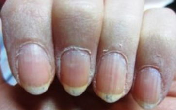 Dry Skin around Nails: Causes, Vitamin Deficiency, How to Fix, Cure ...