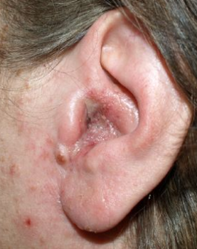 swelling facial Otitis and externa